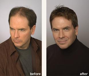 Bellevue Hair Loss Treatment Bellevue Hair Replacement
